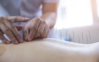 Acupuncture and Post Operative Care